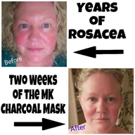 skincare, charcoal, mask, beauty, face, rosacea, acne, blackheads, clay, clay mask, mary kay,